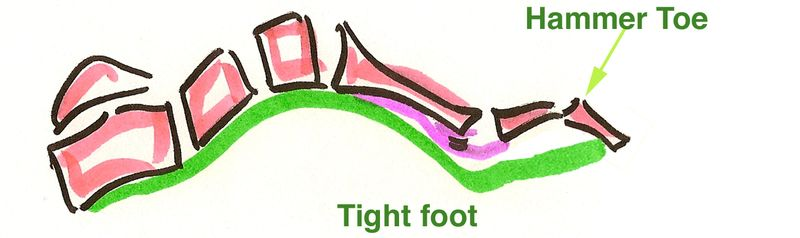 Tightfoot_hammertoe