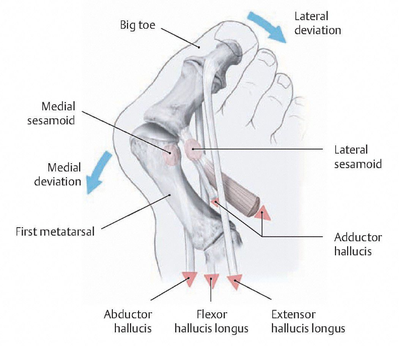 Bunions - The Foot Mechanic